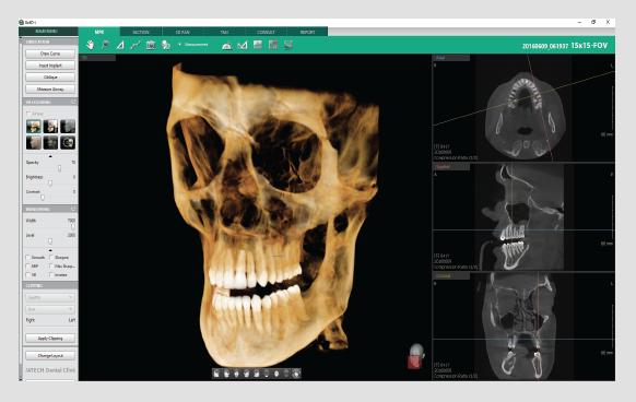 3D dentalni softver