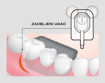 EzSensor HD intraoralni