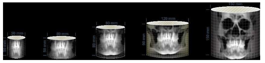 3D PaX-i Green Više vrsta vidnih polja