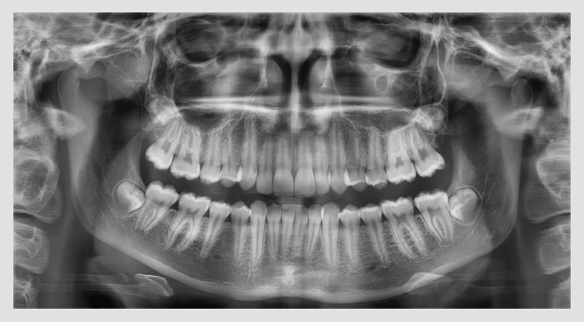 ortopan Vatech PaX-i