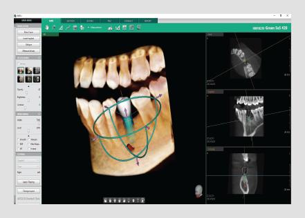 3D dentalni softver MPR TAB