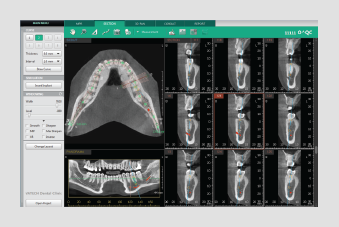 section tab 3D dentalni softver
