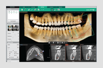 3D PAN TAB 3D dentalni softver