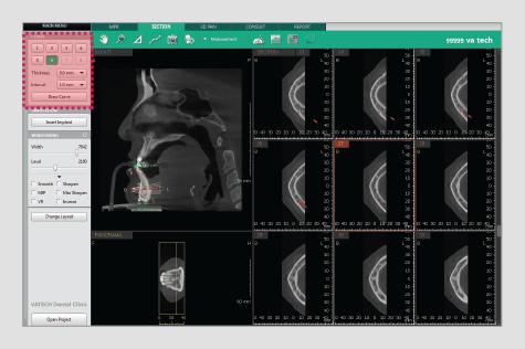 3D softver stomatologija