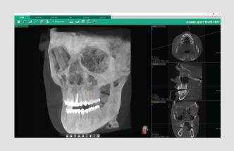 Ez3D-i 3D dentalni softver