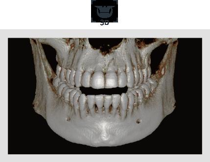 3D CBCT snimak