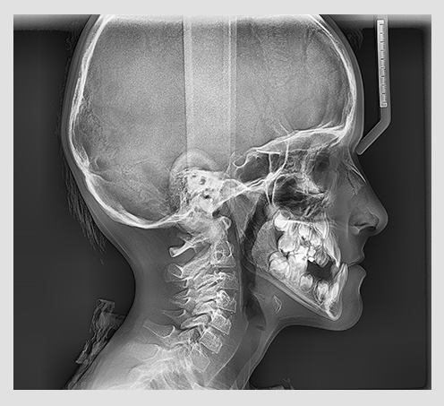 Vatech pax-i potpuno lateralni snimak