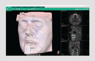 vatech 3D dentalni softver