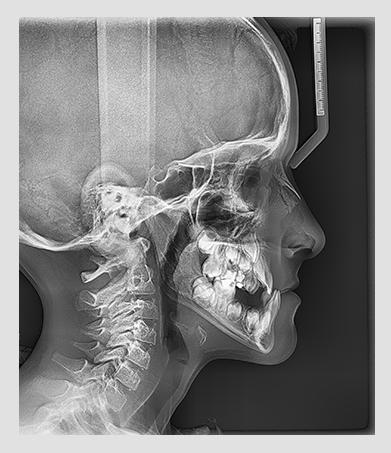 Vatech pax-i-lateralni snimak