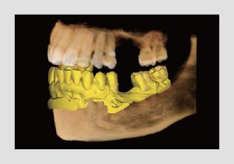 3D PaX-i Green 16 Integrisani CAD_CAM Vatech