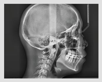Vatech pax-i Cefalometrija OP