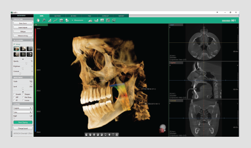 3D dentalni softver analiza disajnog puta