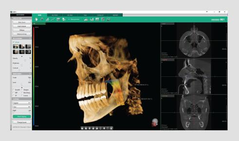 3D dentalni softver analiza disajnog puta