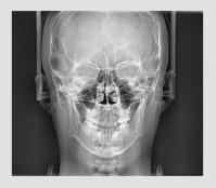 Vatech pax-i cefalometrija PA