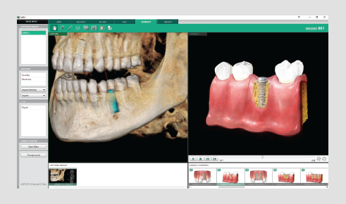 3D dentalni softver konsultacije