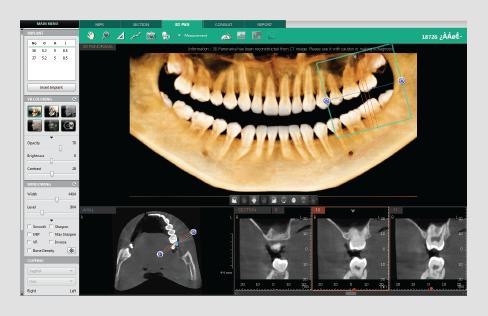 3D dentalni softver panoramska navigacija
