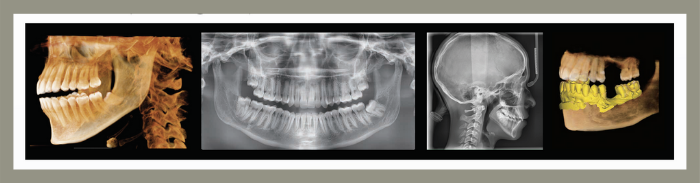 digitalni ortopan PANO, CBCT, CEPH