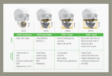 digitalni ortopan FOV