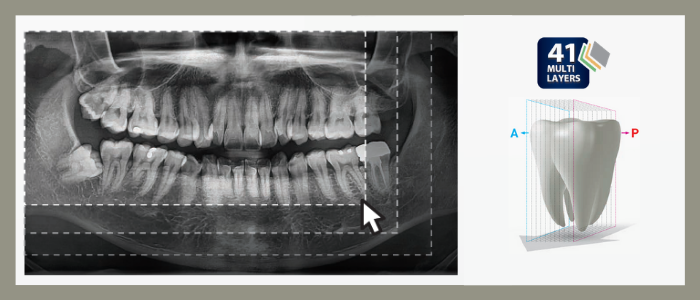 digitalni ortopan snimanje u dubinu